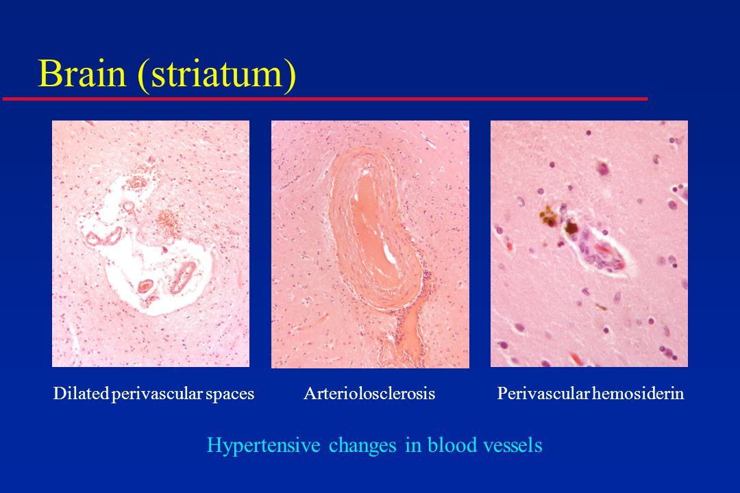Brain (striatum) Dilated perivascular spacesArteriolosclerosisPerivascular hemosiderin Hypertensive changes in blood vessels