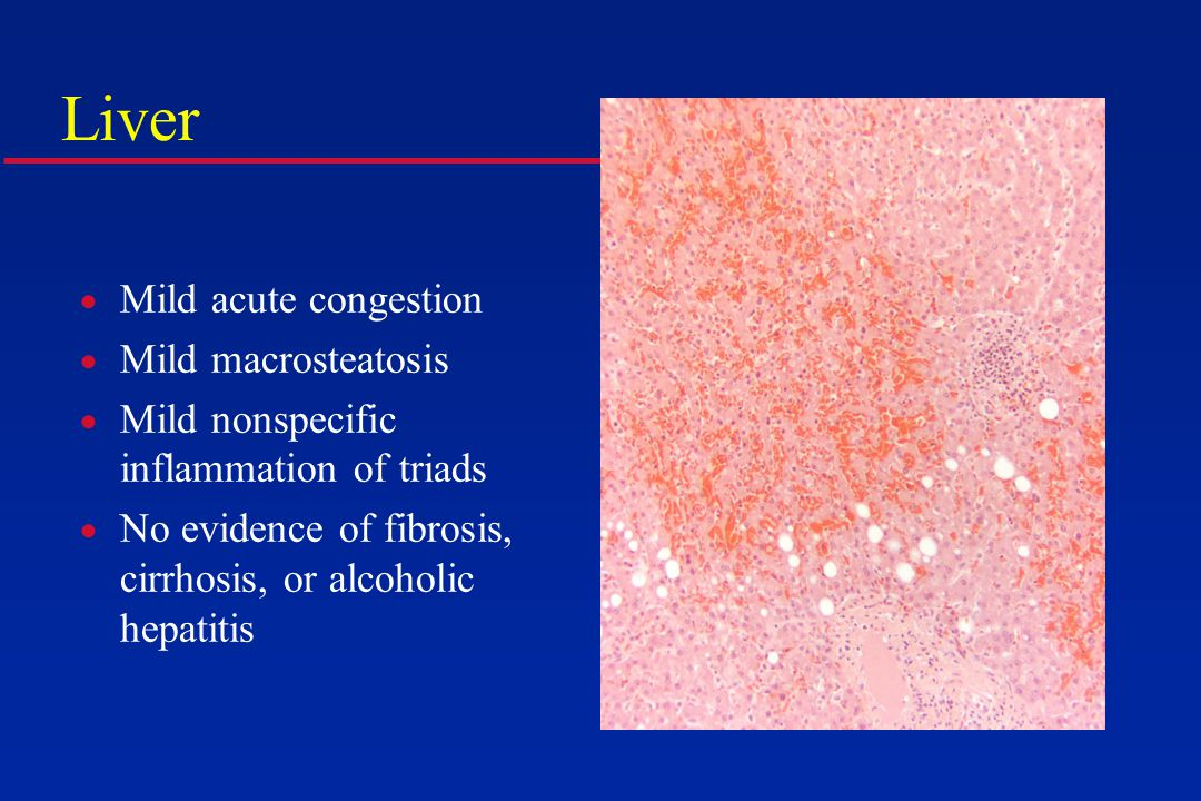 Liver  Mild acute congestion  Mild macrosteatosis  Mild nonspecific inflammation of triads  No evidence of fibrosis, cirrhosis, or alcoholic hepatitis
