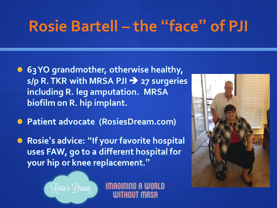Rosie Bartell – the face of PJI 63 YO grandmother, otherwise healthy, s/p R.
