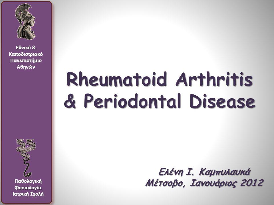 Rheumatoid Arthritis & Periodontal Disease Ελένη Ι.