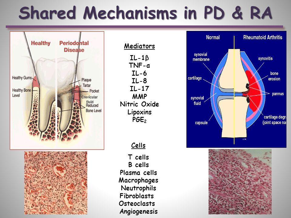Shared Mechanisms in PD & RA Mediators IL-1β TNF-α IL-6 IL-8 IL-17 MMP Nitric Oxide Lipoxins PGE 2 Cells T cells B cells Plasma cells Macrophages Neutrophils Fibroblasts Osteoclasts Angiogenesis Crevicular fluid