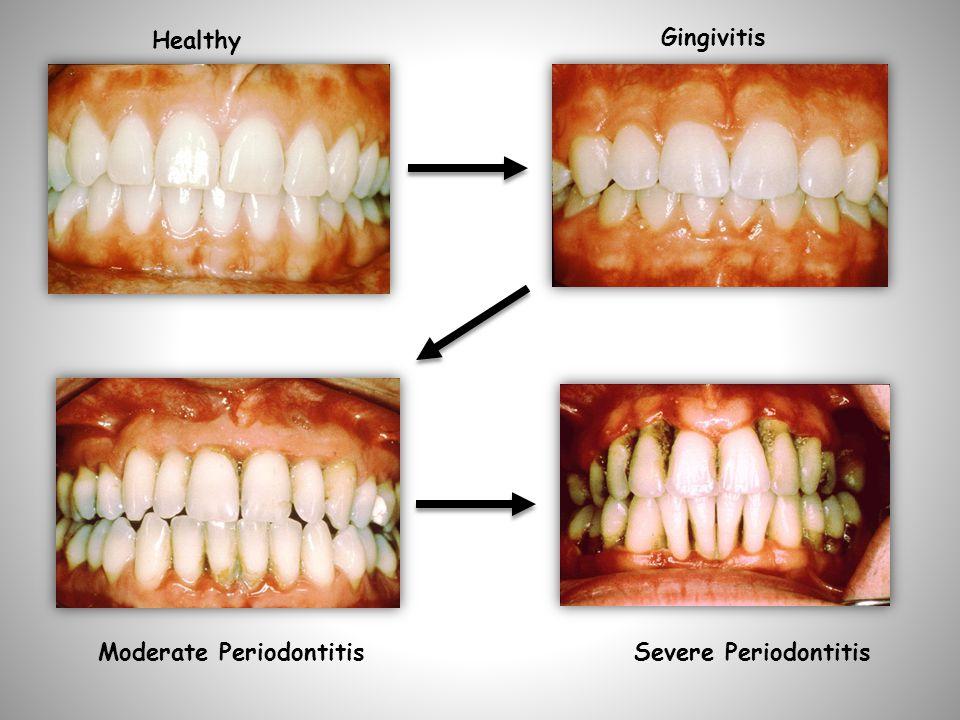 Healthy Gingivitis Moderate PeriodontitisSevere Periodontitis