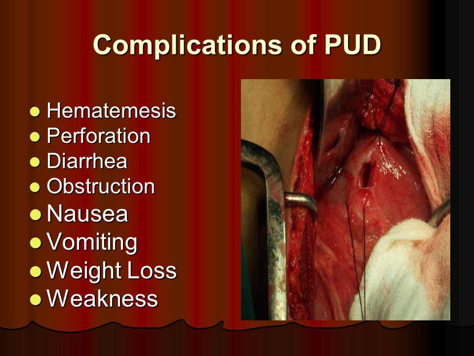 Complications of PUD Hematemesis Hematemesis Perforation Perforation Diarrhea Diarrhea Obstruction Obstruction Nausea Nausea Vomiting Vomiting Weight Loss Weight Loss Weakness Weakness