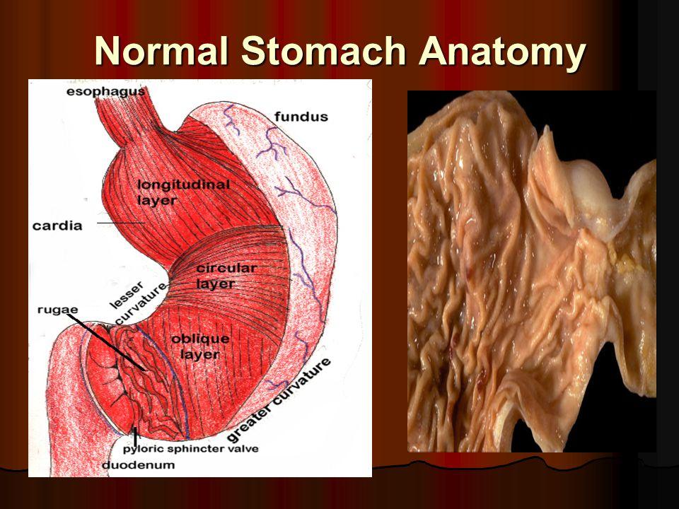 Normal Stomach Anatomy