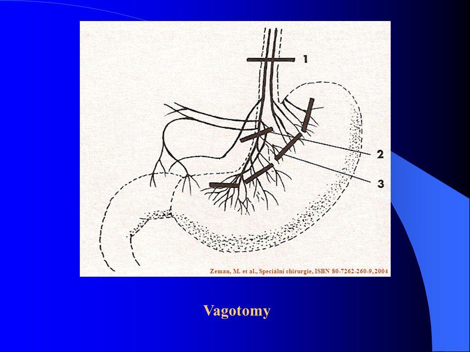 Zeman, M. et al., Speciální chirurgie, ISBN 80-7262-260-9, 2004 Vagotomy
