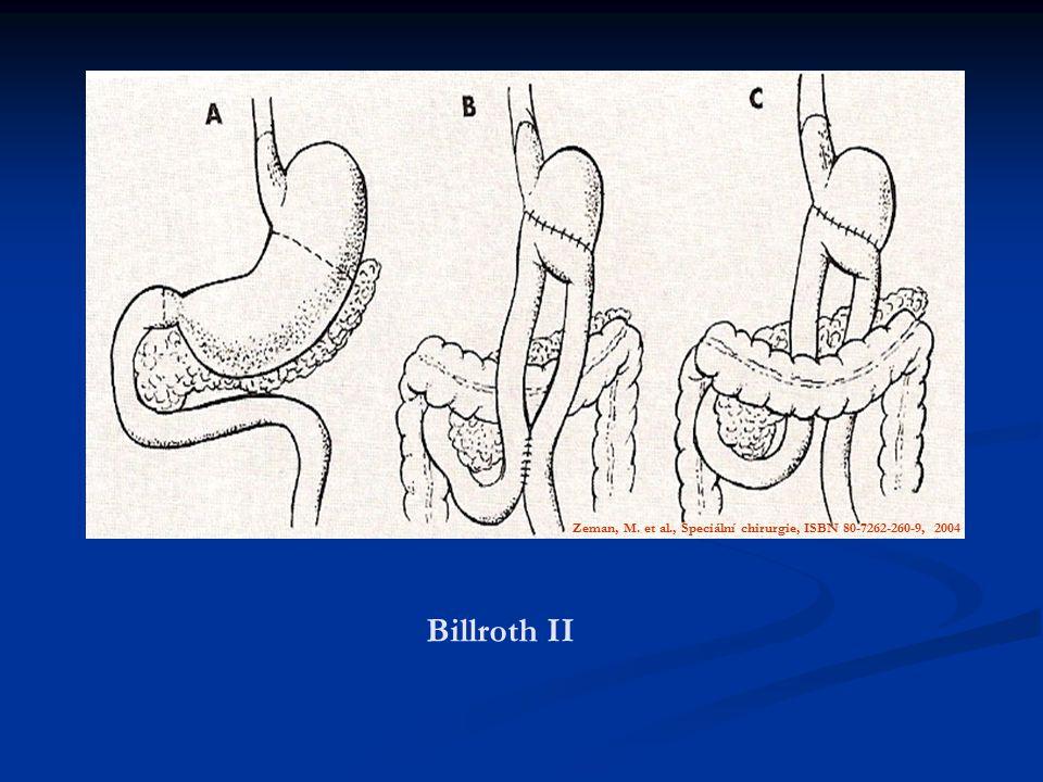 Billroth II Zeman, M. et al., Speciální chirurgie, ISBN 80-7262-260-9, 2004