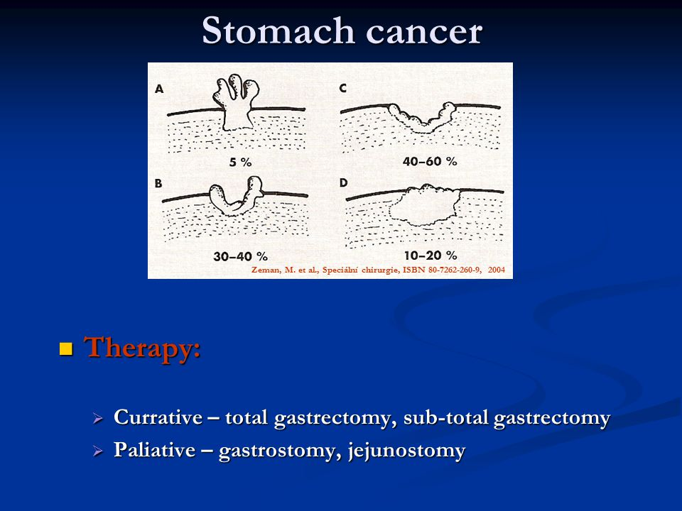Therapy: Therapy:  Currative – total gastrectomy, sub-total gastrectomy  Paliative – gastrostomy, jejunostomy Stomach cancer Zeman, M. et al., Speci