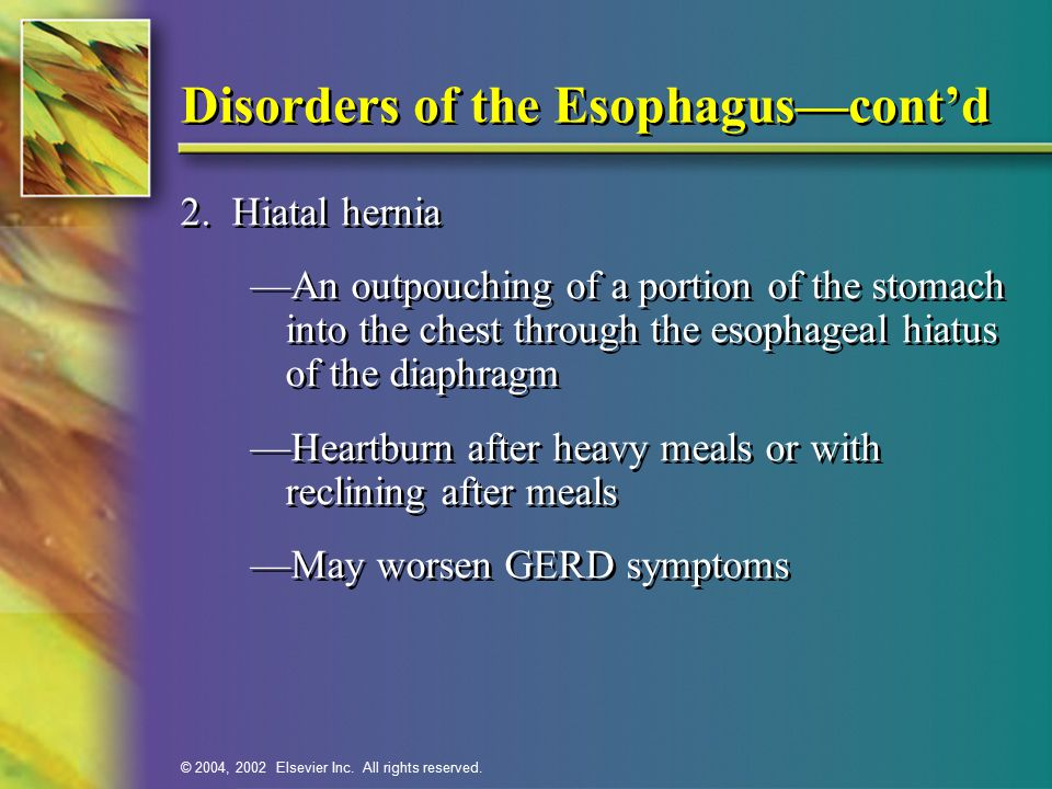 © 2004, 2002 Elsevier Inc. All rights reserved. Disorders of the Esophagus—cont'd 2.