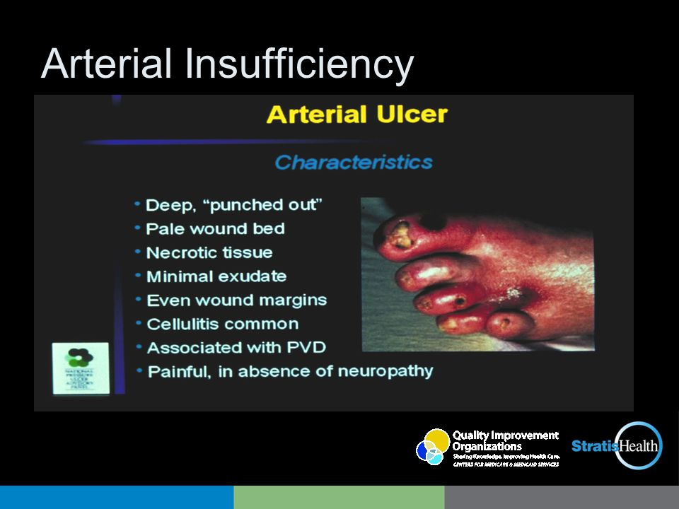Arterial Insufficiency