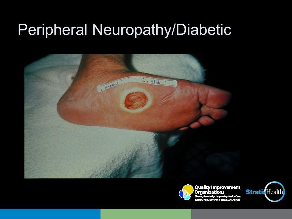 Peripheral Neuropathy/Diabetic