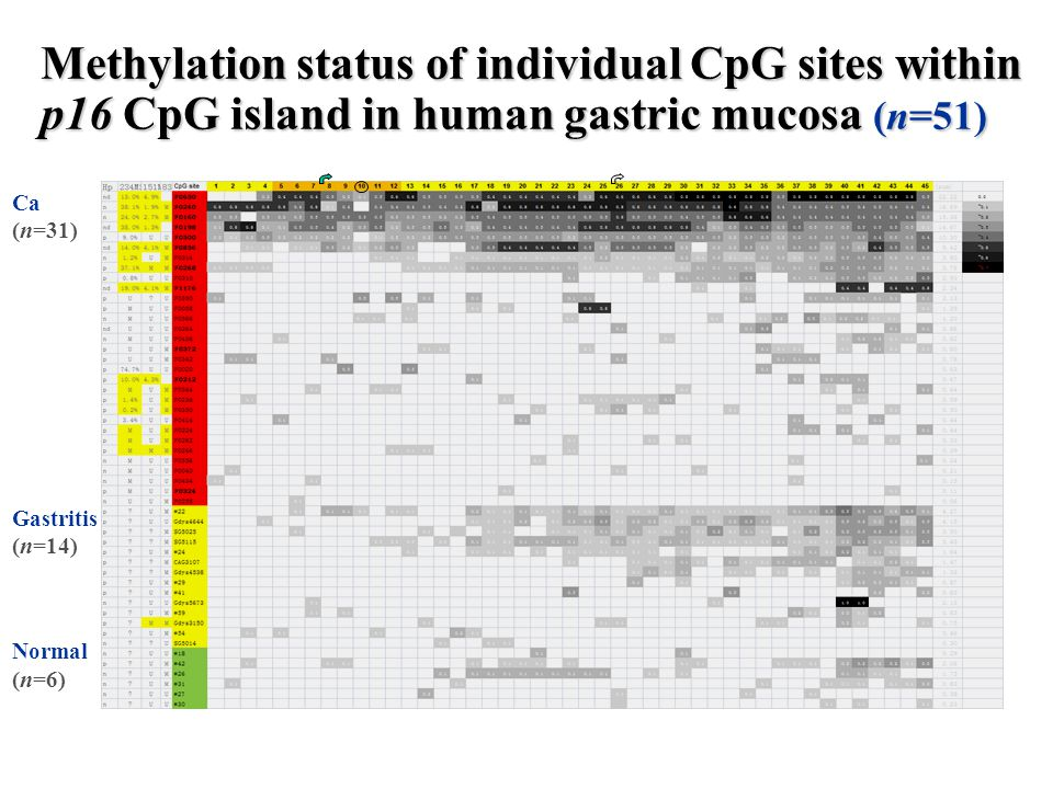 Methylation status of individual CpG sites within p16 CpG island in human gastric mucosa (n=51) Ca (n=31) Gastritis (n=14) Normal (n=6)