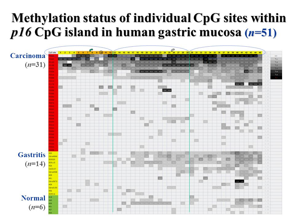 Methylation status of individual CpG sites within p16 CpG island in human gastric mucosa (n=51) Carcinoma (n=31) Gastritis (n=14) Normal (n=6)