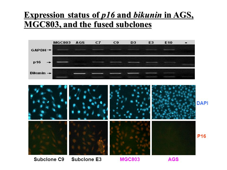 Subclone C9 Subclone E3 MGC803 AGS DAPI P16 Expression status of p16 and bikunin in AGS, MGC803, and the fused subclones