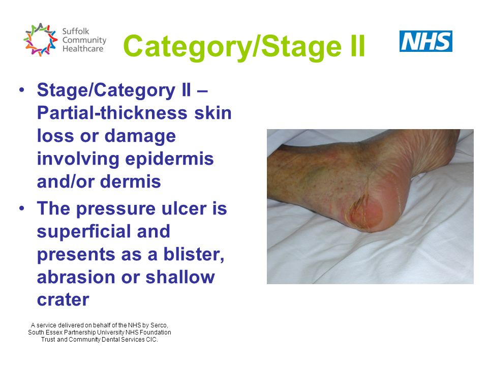 Category/Stage II Stage/Category II – Partial-thickness skin loss or damage involving epidermis and/or dermis The pressure ulcer is superficial and presents as a blister, abrasion or shallow crater A service delivered on behalf of the NHS by Serco, South Essex Partnership University NHS Foundation Trust and Community Dental Services CIC.
