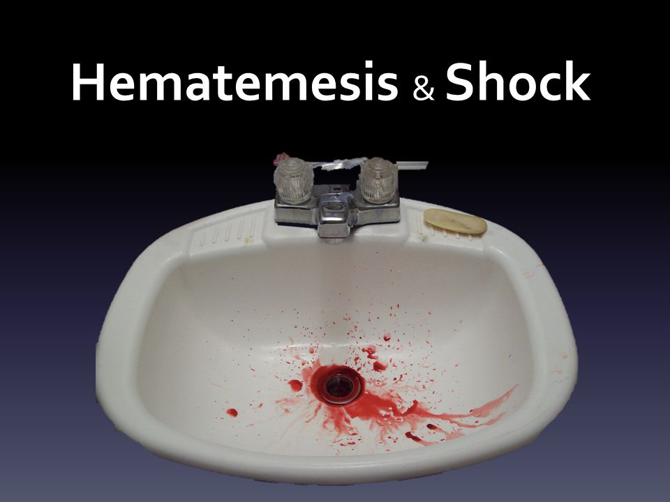 Hematemesis & Shock