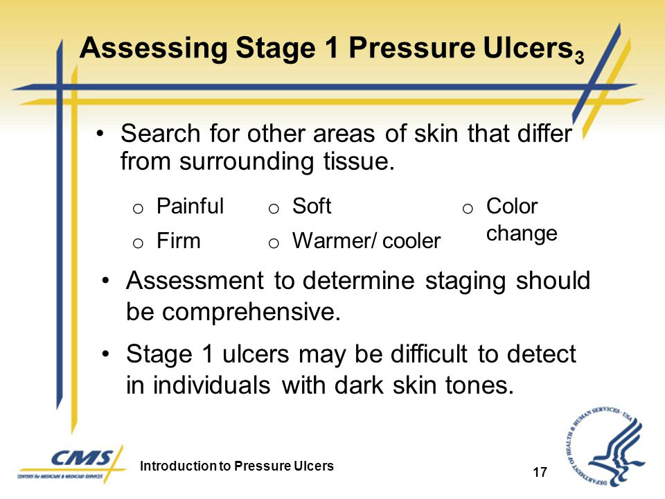 Introduction to Pressure Ulcers 17 Assessing Stage 1 Pressure Ulcers 3 Search for other areas of skin that differ from surrounding tissue. o Painful o