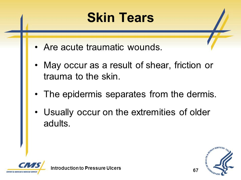 Introduction to Pressure Ulcers 67 Skin Tears Are acute traumatic wounds. May occur as a result of shear, friction or trauma to the skin. The epidermi