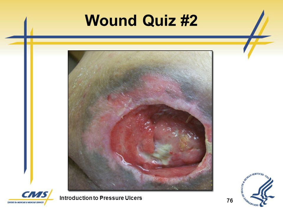 Introduction to Pressure Ulcers 76 Wound Quiz #2
