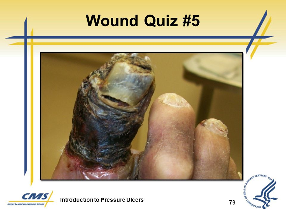 Introduction to Pressure Ulcers 79 Wound Quiz #5
