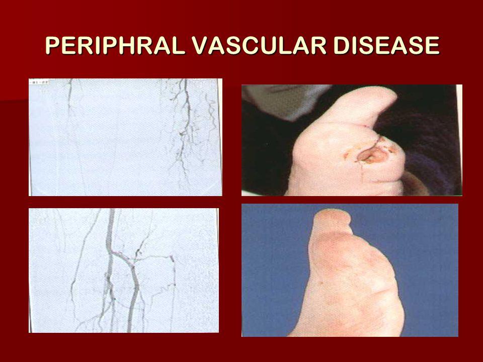 PERIPHRAL VASCULAR DISEASE