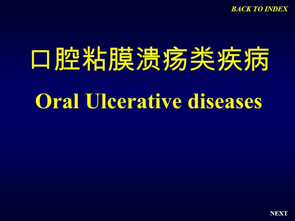 NEXT 口腔粘膜溃疡类疾病 Oral Ulcerative diseases BACK TO INDEX