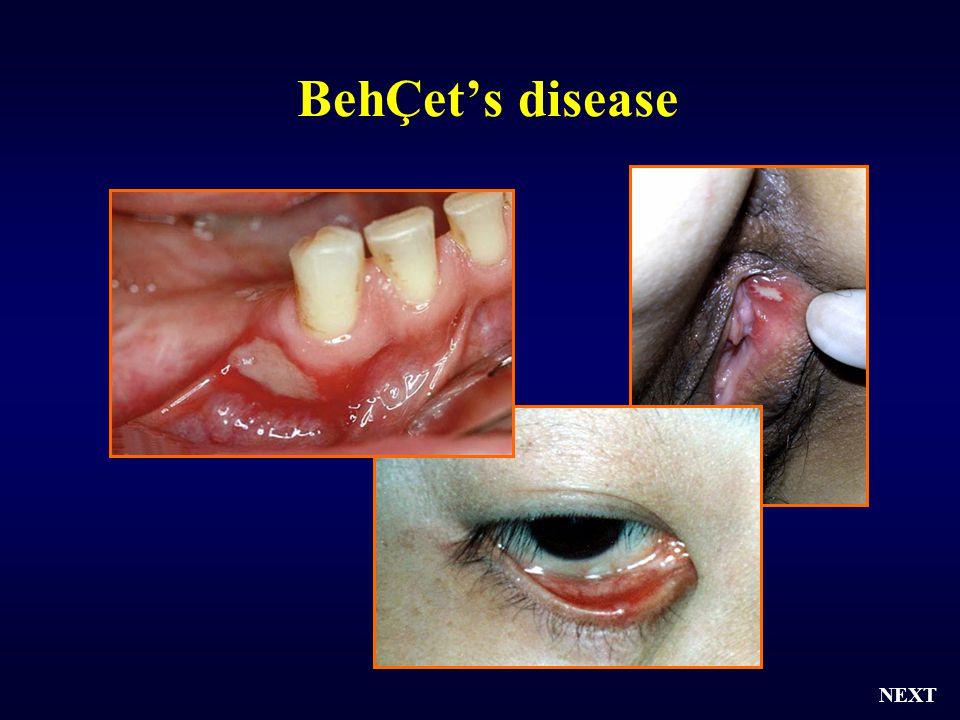 BehÇet's disease NEXT