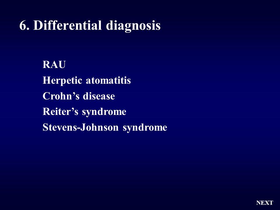 6. Differential diagnosis NEXT RAU Herpetic atomatitis Crohn's disease Reiter's syndrome Stevens-Johnson syndrome