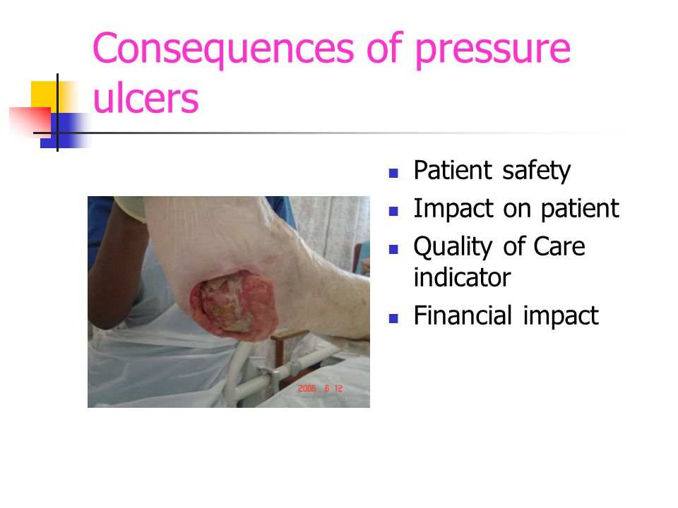 Definition of pressure ulcer localised injury to the skin and/underlying tissue usually over a bony prominence, as a result of pressure or pressure in combination with shear (EPUAP & NPUAP 2009)