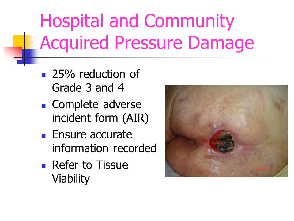 Hospital and Community Acquired Pressure Damage 25% reduction of Grade 3 and 4 Complete adverse incident form (AIR) Ensure accurate information recorded Refer to Tissue Viability
