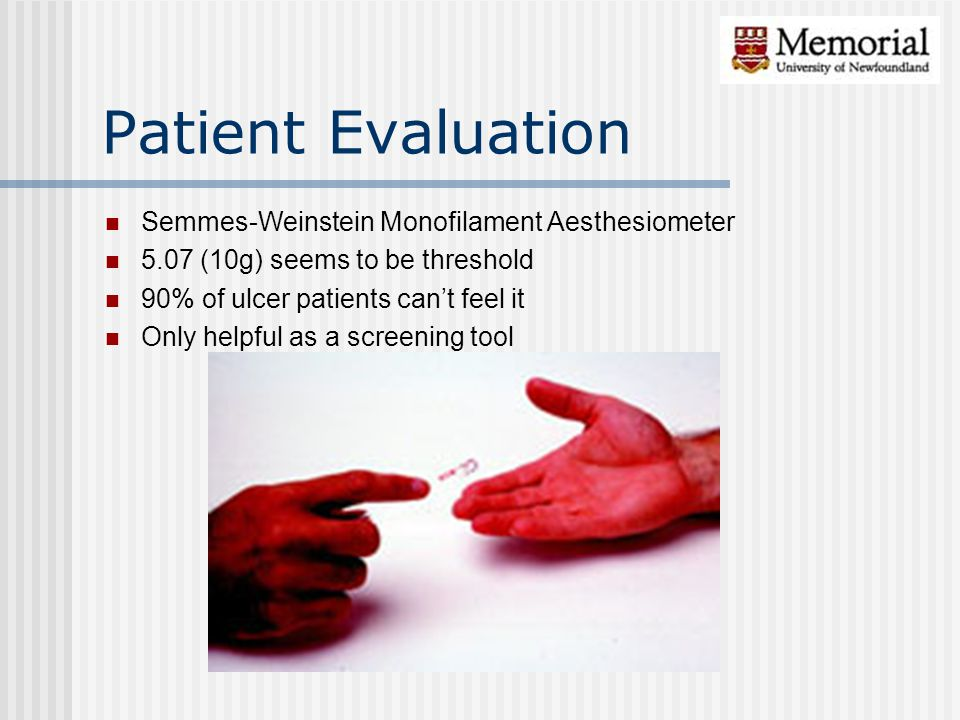 Patient Evaluation Semmes-Weinstein Monofilament Aesthesiometer 5.07 (10g) seems to be threshold 90% of ulcer patients can't feel it Only helpful as a