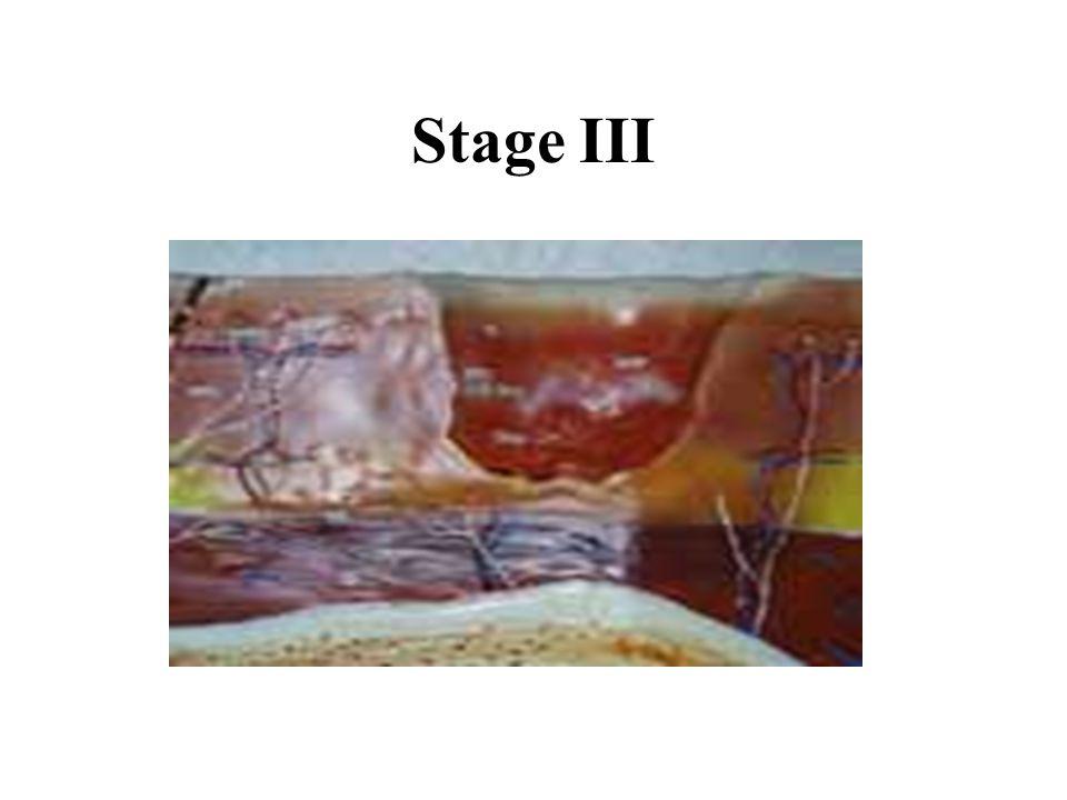 Stage III