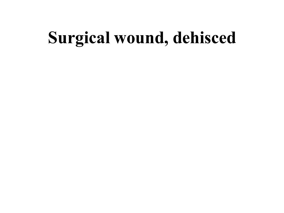 Surgical wound, dehisced