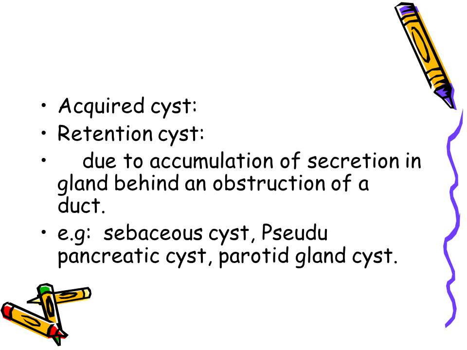 Acquired cyst: Retention cyst: due to accumulation of secretion in gland behind an obstruction of a duct. e.g: sebaceous cyst, Pseudu pancreatic cyst,