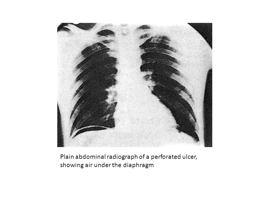 Plain abdominal radiograph of a perforated ulcer, showing air under the diaphragm