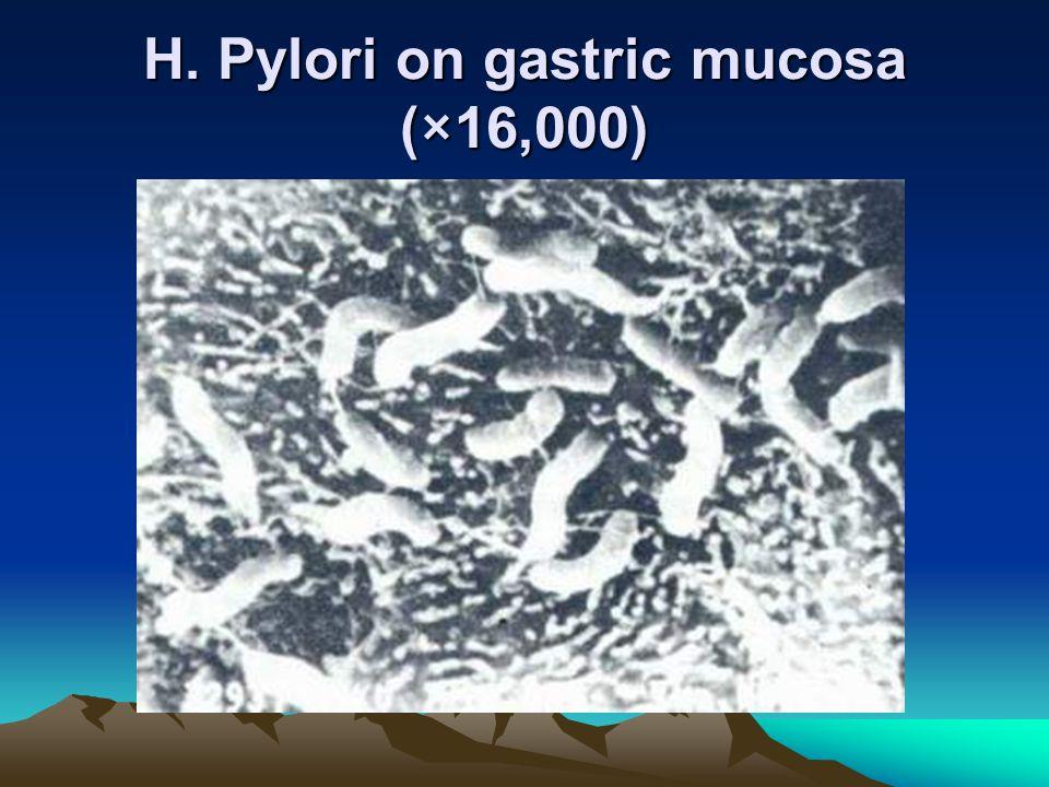 H. Pylori on gastric mucosa (×16,000)