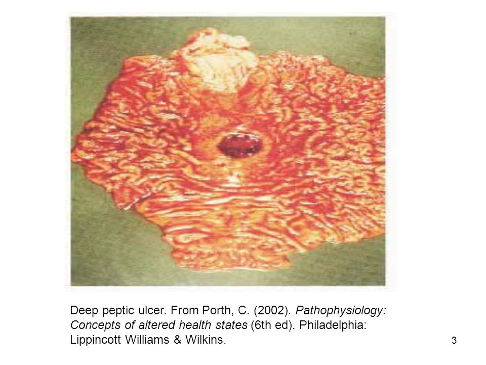 3 Deep peptic ulcer. From Porth, C. (2002).