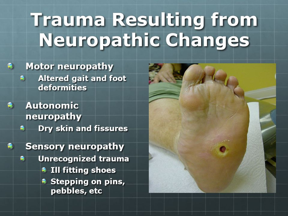 Trauma Resulting from Neuropathic Changes Motor neuropathy Altered gait and foot deformities Autonomic neuropathy Dry skin and fissures Sensory neuropathy Unrecognized trauma Ill fitting shoes Stepping on pins, pebbles, etc