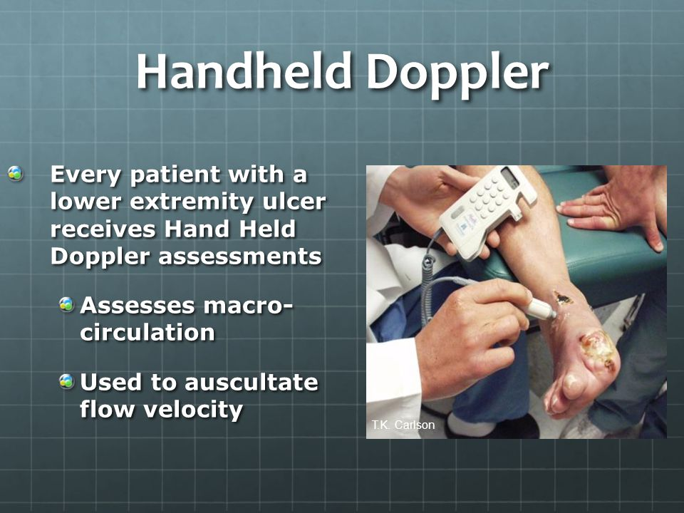 Handheld Doppler Every patient with a lower extremity ulcer receives Hand Held Doppler assessments Assesses macro- circulation Used to auscultate flow velocity T.K.