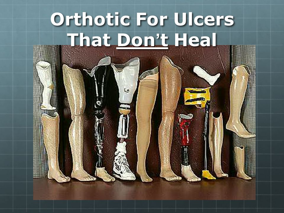 Orthotic For Ulcers That Don't Heal