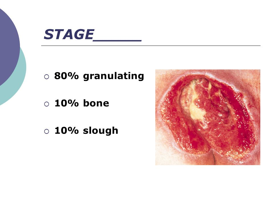  80% granulating  10% bone  10% slough