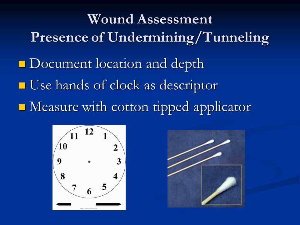 Wound Assessment Presence of Undermining/Tunneling Document location and depth Document location and depth Use hands of clock as descriptor Use hands
