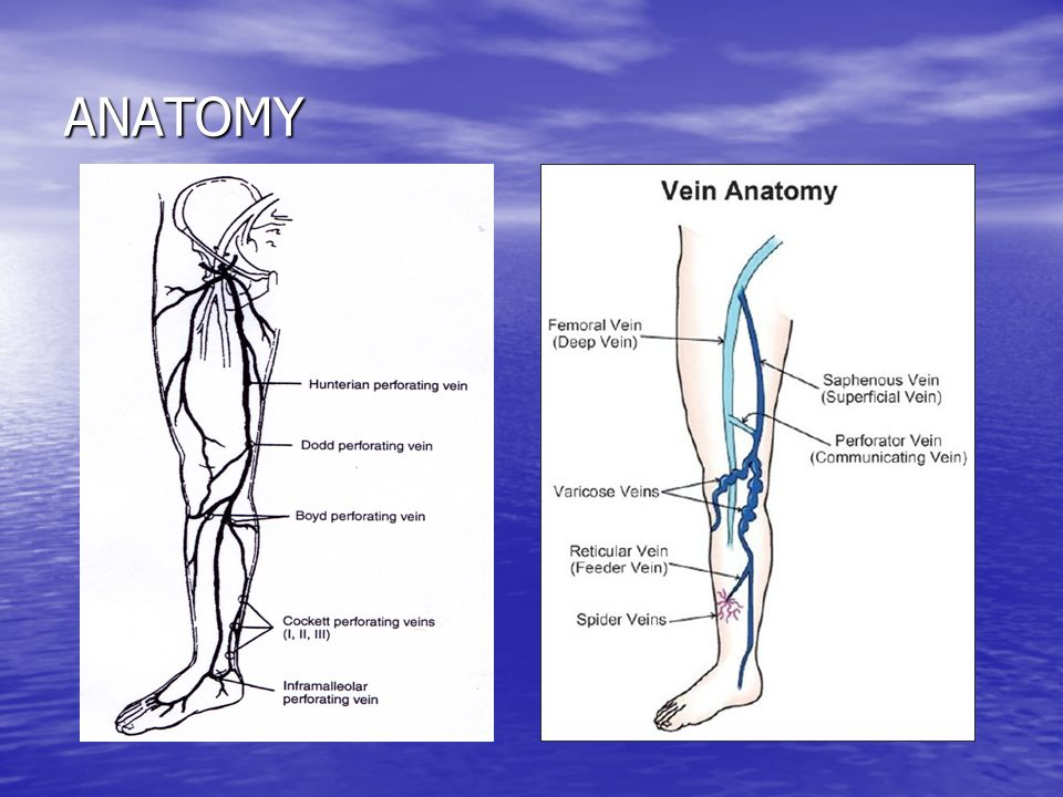 DVT – obstruction (initially always)