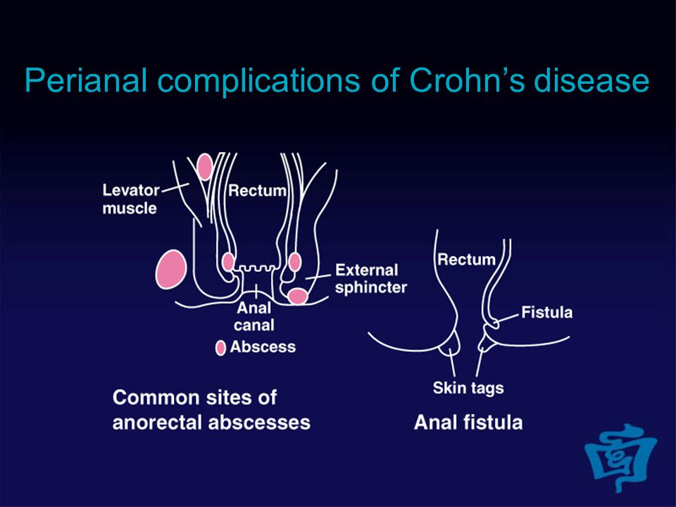 Perianal complications of Crohn's disease