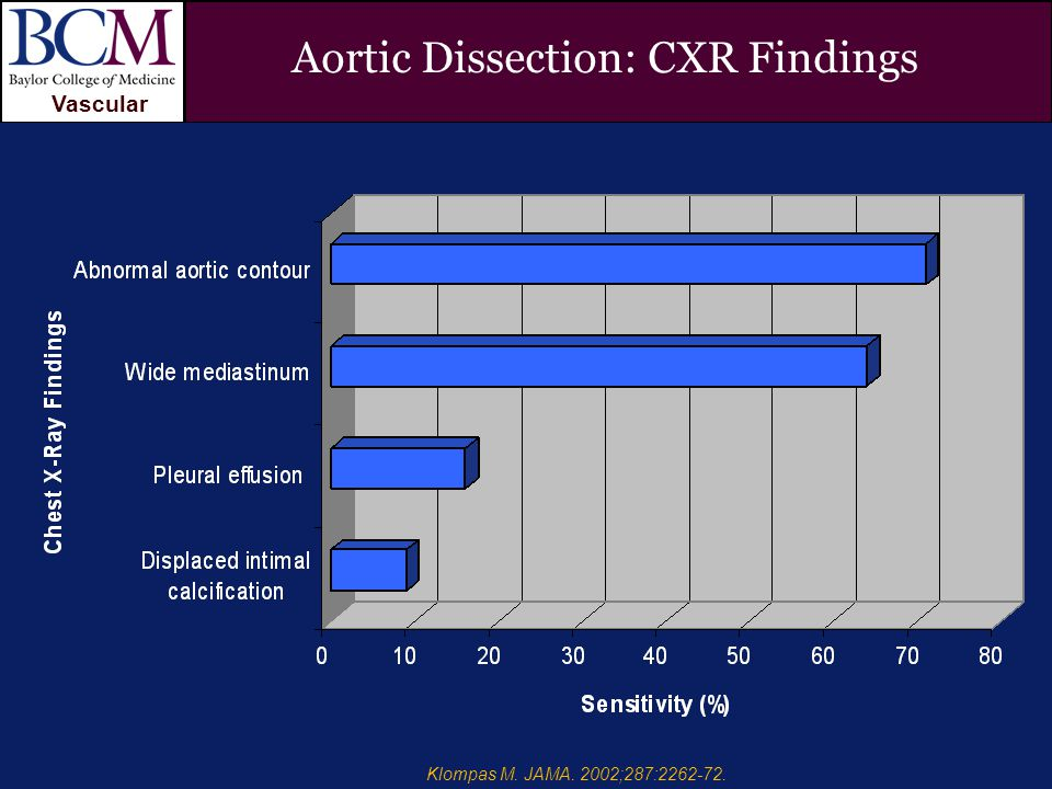 VASCULAR Vascular Penetrating Ulcer and Aortic Dissection Peter Lin, MD Aortic Dissection: CXR Findings Klompas M.
