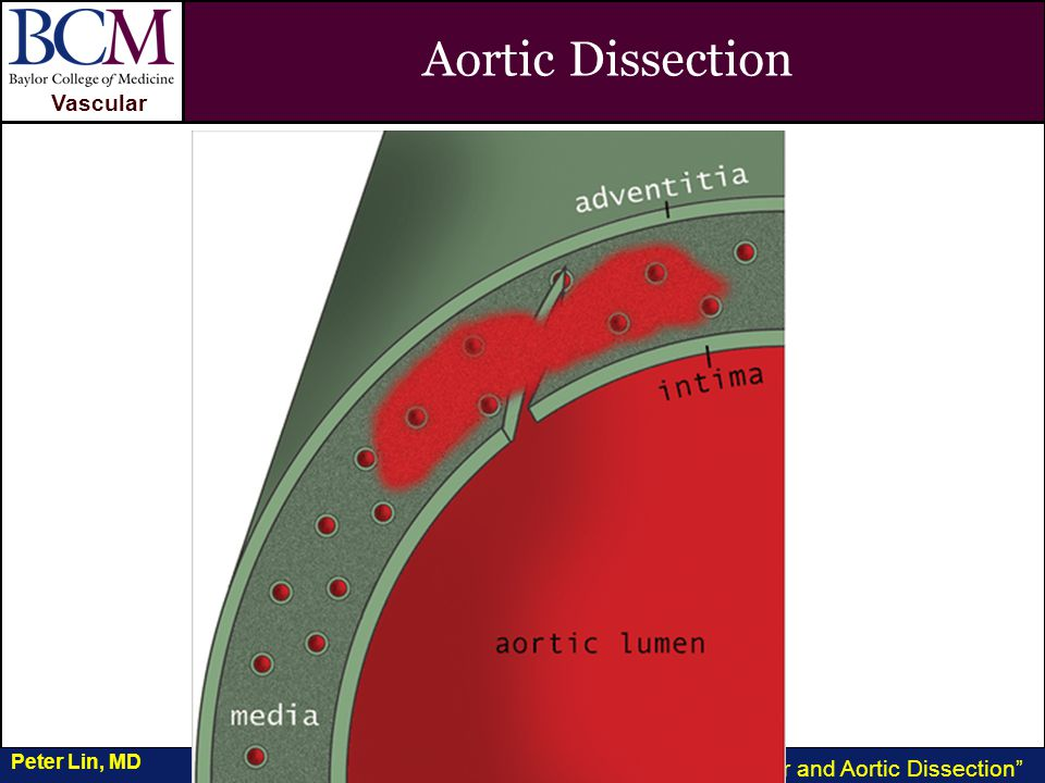 VASCULAR Vascular Penetrating Ulcer and Aortic Dissection Peter Lin, MD Aortic Dissection