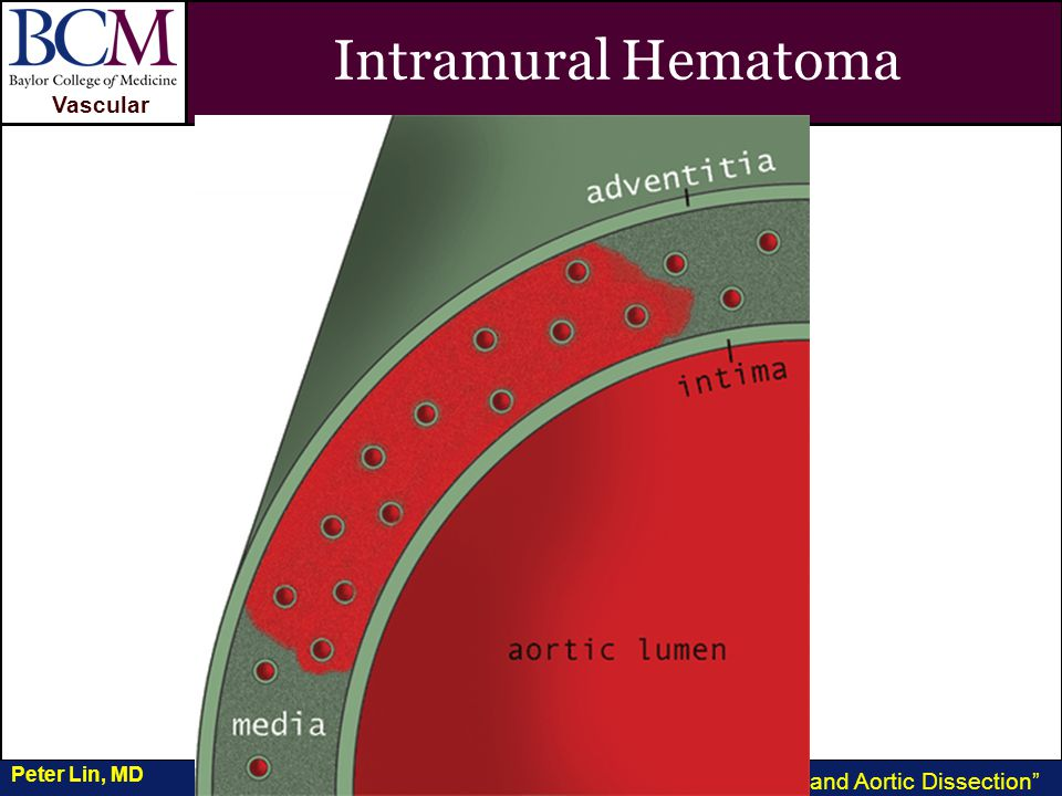 VASCULAR Vascular Penetrating Ulcer and Aortic Dissection Peter Lin, MD Intramural Hematoma