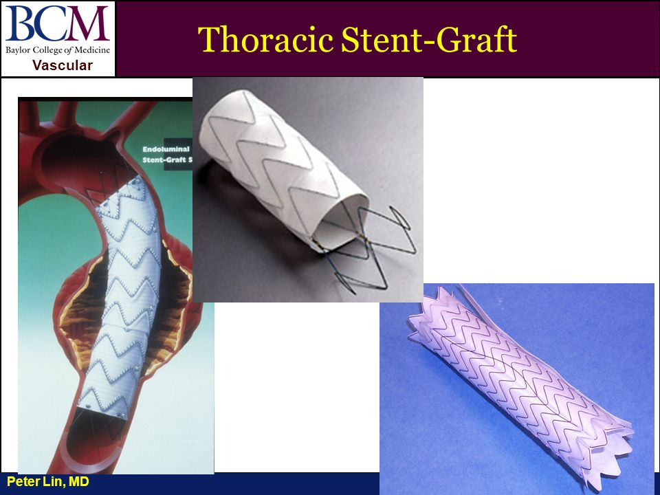 VASCULAR Vascular Penetrating Ulcer and Aortic Dissection Peter Lin, MD Thoracic Stent-Graft