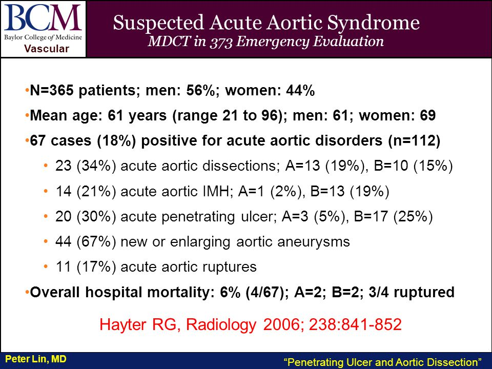VASCULAR Vascular Penetrating Ulcer and Aortic Dissection Peter Lin, MD Suspected Acute Aortic Syndrome MDCT in 373 Emergency Evaluation N=365 patients; men: 56%; women: 44% Mean age: 61 years (range 21 to 96); men: 61; women: 69 67 cases (18%) positive for acute aortic disorders (n=112) 23 (34%) acute aortic dissections; A=13 (19%), B=10 (15%) 14 (21%) acute aortic IMH; A=1 (2%), B=13 (19%) 20 (30%) acute penetrating ulcer; A=3 (5%), B=17 (25%) 44 (67%) new or enlarging aortic aneurysms 11 (17%) acute aortic ruptures Overall hospital mortality: 6% (4/67); A=2; B=2; 3/4 ruptured Hayter RG, Radiology 2006; 238:841-852