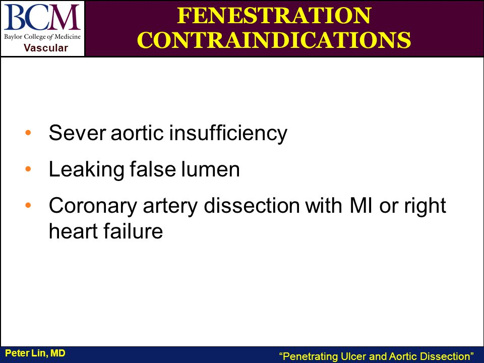 VASCULAR Vascular Penetrating Ulcer and Aortic Dissection Peter Lin, MD FENESTRATION CONTRAINDICATIONS Sever aortic insufficiency Leaking false lumen Coronary artery dissection with MI or right heart failure