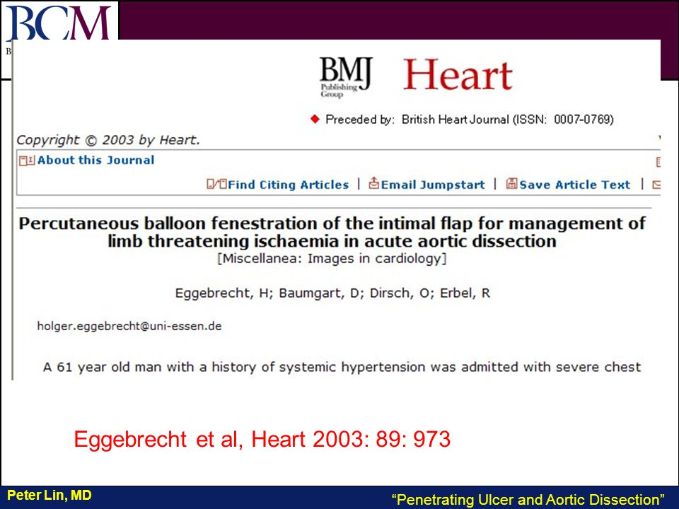 VASCULAR Vascular Penetrating Ulcer and Aortic Dissection Peter Lin, MD Eggebrecht et al, Heart 2003: 89: 973